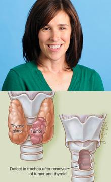 Danielle Hamarich - Advanced Thyroid Cancer | Institute for